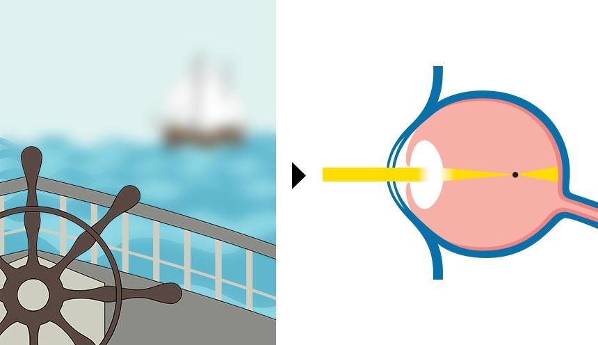 Kurzsichtigkeit | Vergleich von Fehlsichtigkeiten / Augenoperation, LASIK