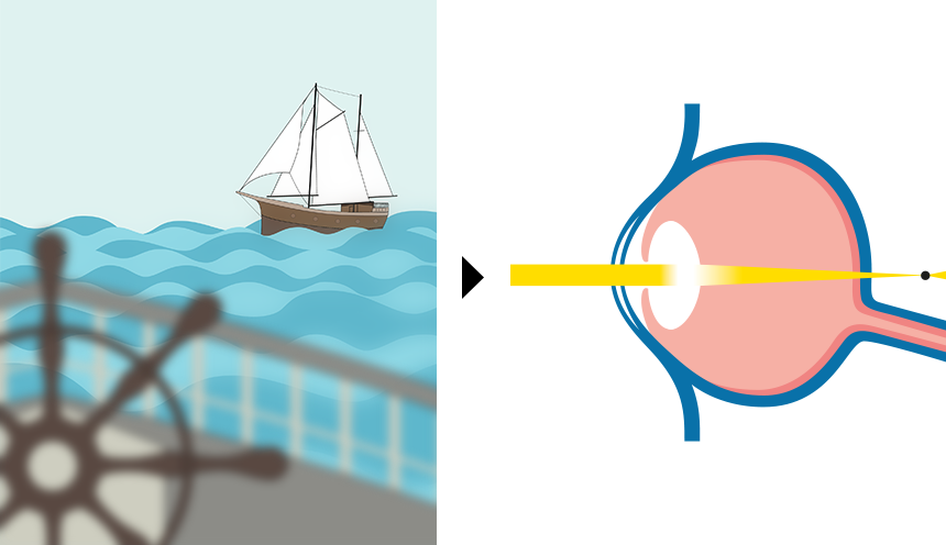 Weitsichtigkeit | Vergleich von Fehlsichtigkeiten / Augenoperation, LASIK