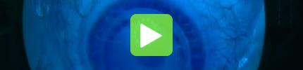 Femto-LASIK-OP Video