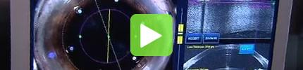 Grauer Star Laseroperation, Femtosekundenlaser, Video